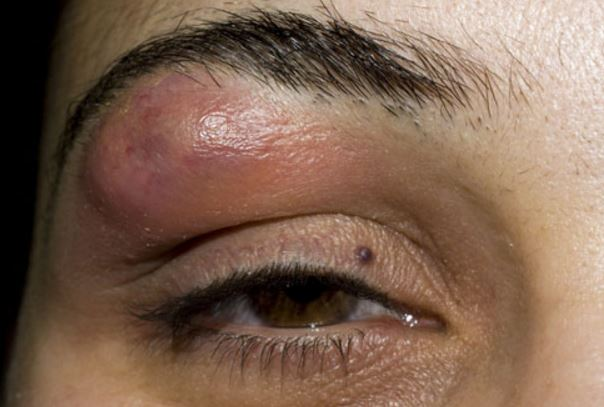 Lump In Eyebrow Bone Causes Above Eyebrow Cancer