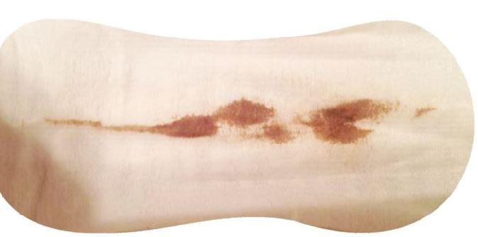 Brown Stringy Discharge Pregnancy Dark Period Light 9